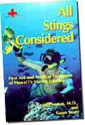 【BOOKS】All Stings Considered:  First Aid and Medical  Treatment of Hawai i s  Marine Injuries by C/書籍・新聞雑誌/海外版/幼児・子供